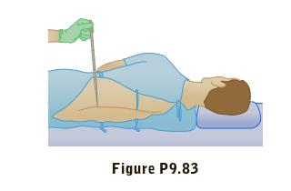 Figure P9.83