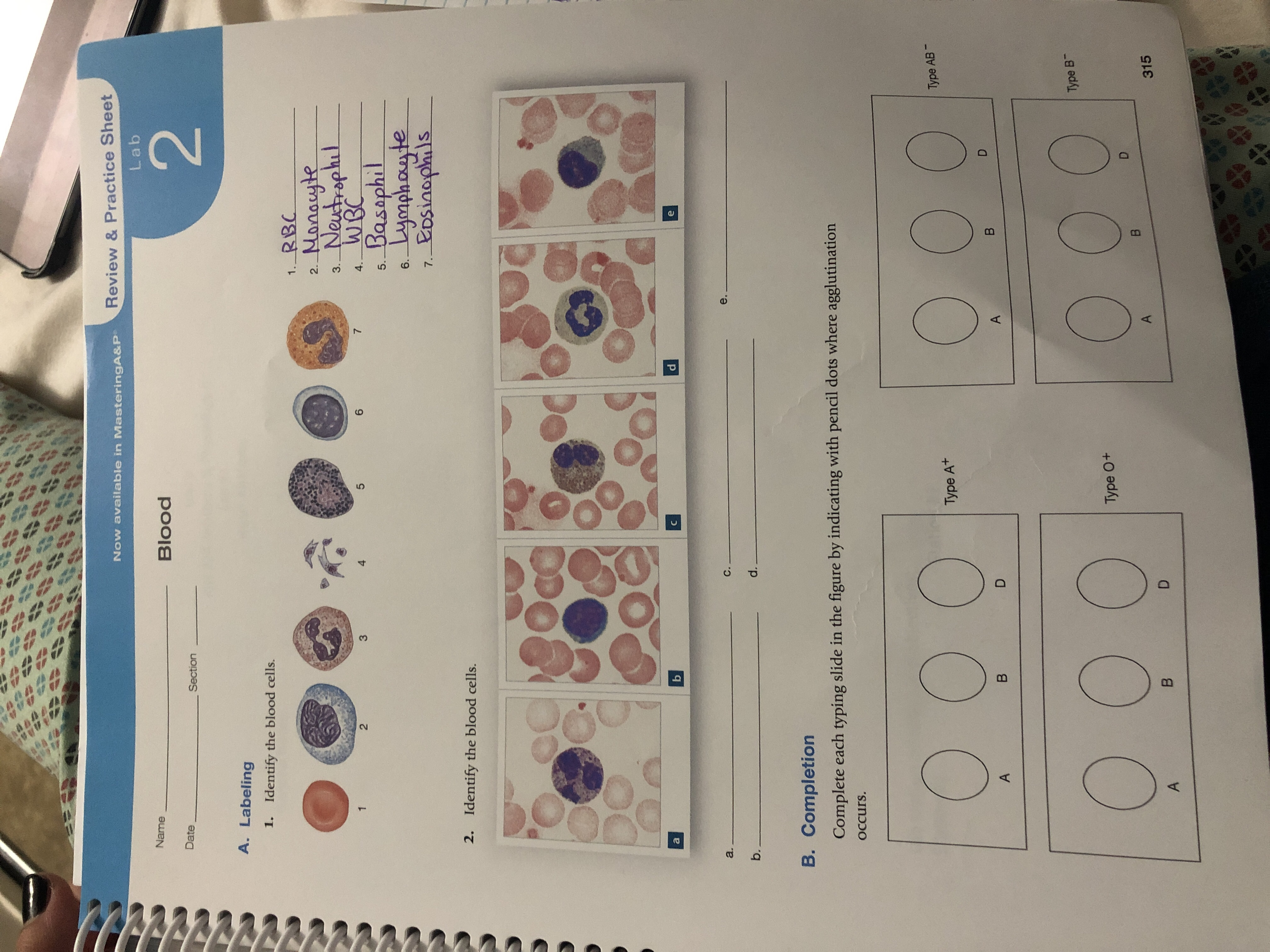 Now available in MasteringA&P Review & Practice Sheet Lab Name Blood 2 Date Section A. Labeling 1. Identify the blood cells. RBC 1. Manauyle Neutrophil WBC Basaphil Lymphayte Eosiaaphils 2. 3. 1 2 3 4 5 6 7 4. 5. 6. 7. 2. Identify the blood cells. a b a. C. e. b. d. B. Completion Complete each typing slide in the figure by indicating with pencil dots where agglutination Occurs. Type AB Type At A B D B A Type B Type 0+ D B A D 315 B A # td BP 4 d ro ##4## ef 0