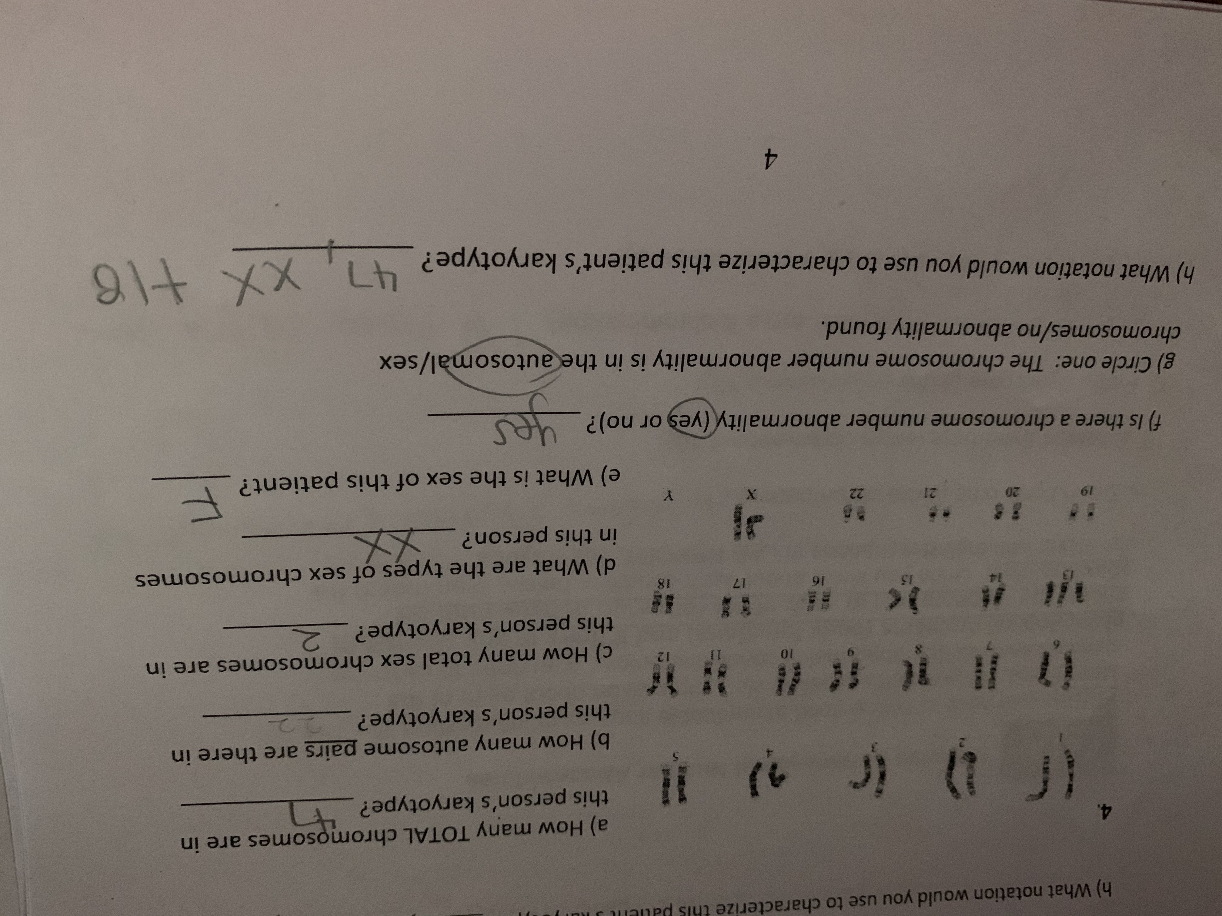 t SEE joR h) What notation would you use to characterize thls a) How many TOTAL chromosomes are in this person's karyotype? it ( t à * # C b) How many autosome pairs are there in this person's karyotype? 12 II c) How many total sex chromosomes are in this person's karyotype? 2 S 18 15 17 Fl 91 d) What are the types of sex chromosomes in this person?_ X @E 12 8 gd X e) What is the sex of this patient? f) Is there a chromosome number abnormality (yes or no)? g) Circle one: The chromosome number abnormality is in theautosomal/sex chromosomes/no abnormality found. ग्की चOu. h) What notation would you use to characterize this patient's karyotype? Lh