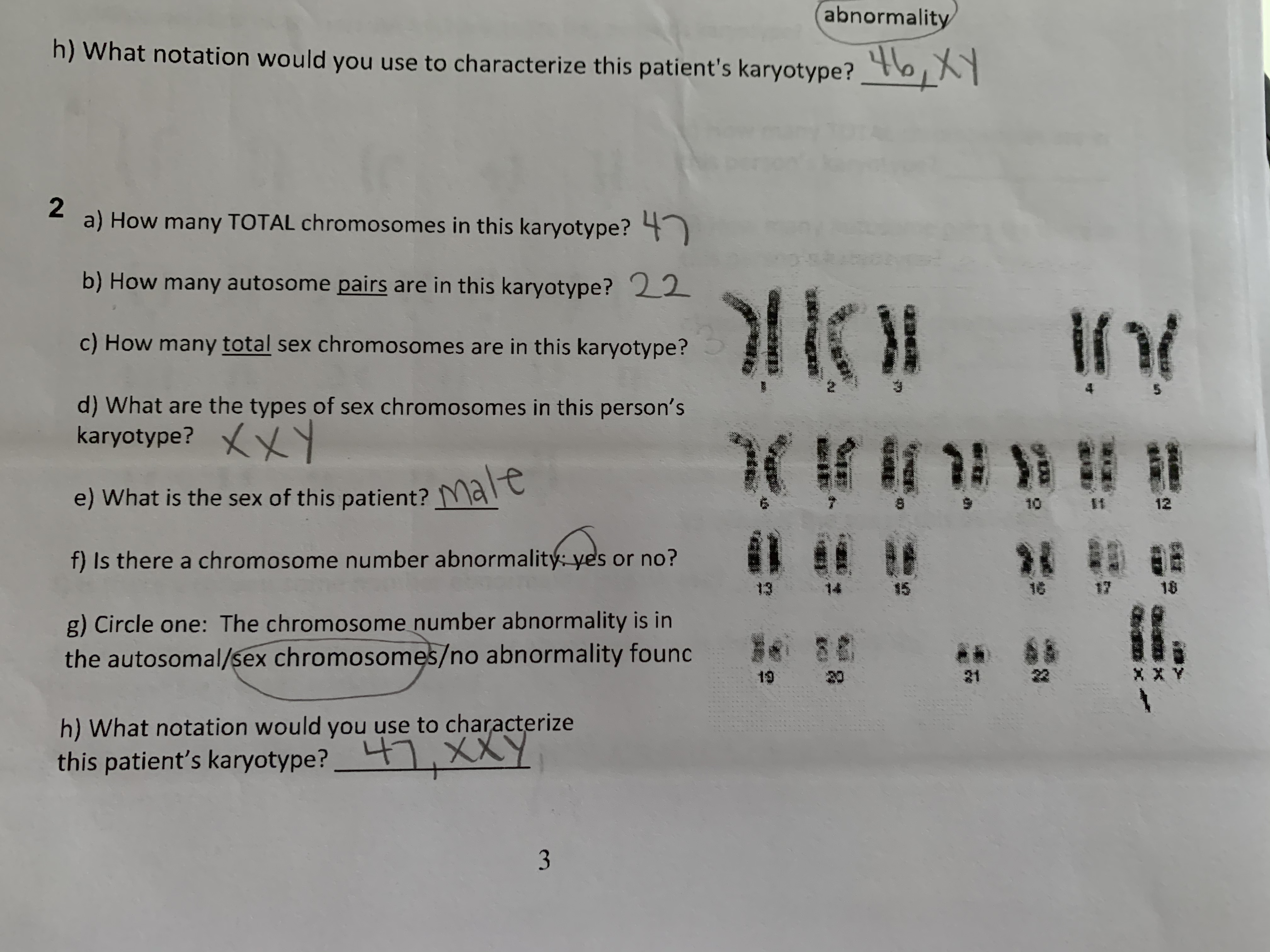 atm> abnormality h)What notation would you use to characterize this patient's karyotype? 2 a) How many TOTAL chromosomes in this karyotype? b) How many autosome pairs are in this karyotype? 22 c) How many total sex chromosomes are in this karyotype? 5 d) What are the types of sex chromosomes in this person's karyotype? t Male e) What is the sex of this patient? K t 10 IM 12 f) Is there a chromosome number abnormality: yes or no? 13 14 16 18 g) Circle one: The chromosome number abnormality is in the autosomal/sex chromosomes/no abnormality founc as 19 21 h) What notation would you use to characterize this patient's karyotype? XXY 3